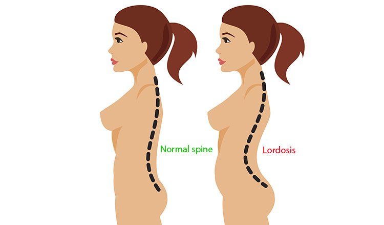 skinny with a belly due to lordosis
