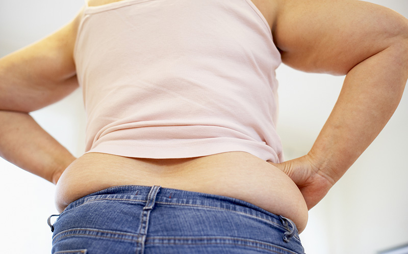 How to Get Rid of Back Fat Rolls without Surgery